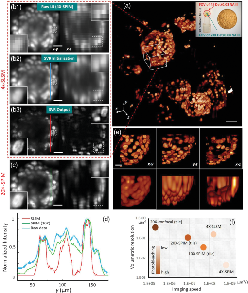 Subvoxel light-sheet microscopy for high-resolution high