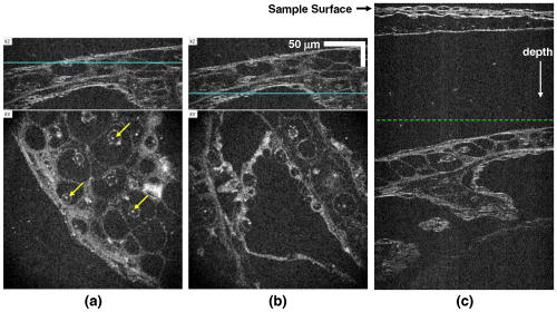 In vivo video-rate cellular-level full-field optical coherence