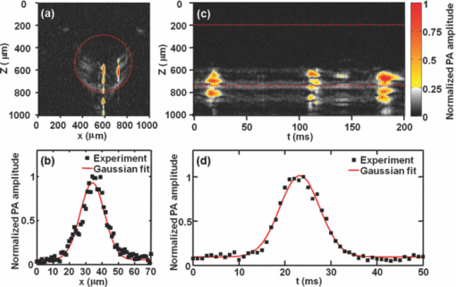 Fiber-laser-based photoacoustic microscopy and melanoma cell detection