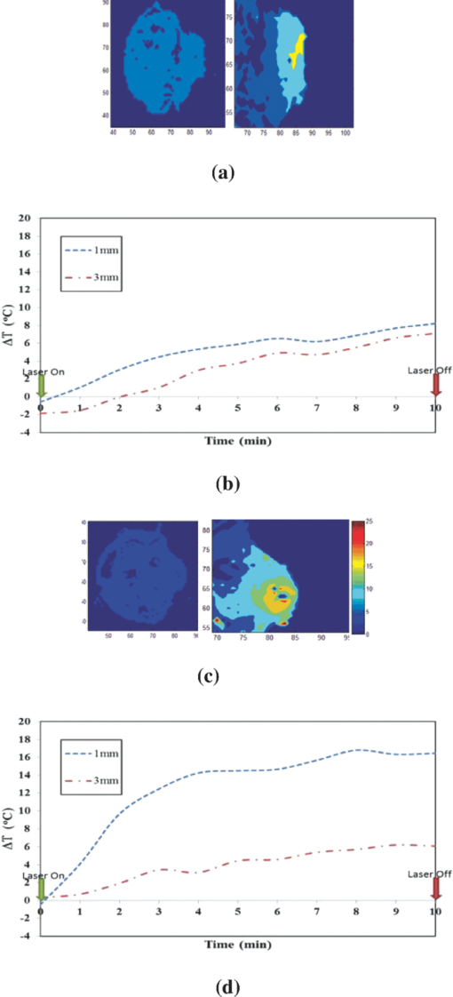 Assessment of thermal effects of interstitial laser
