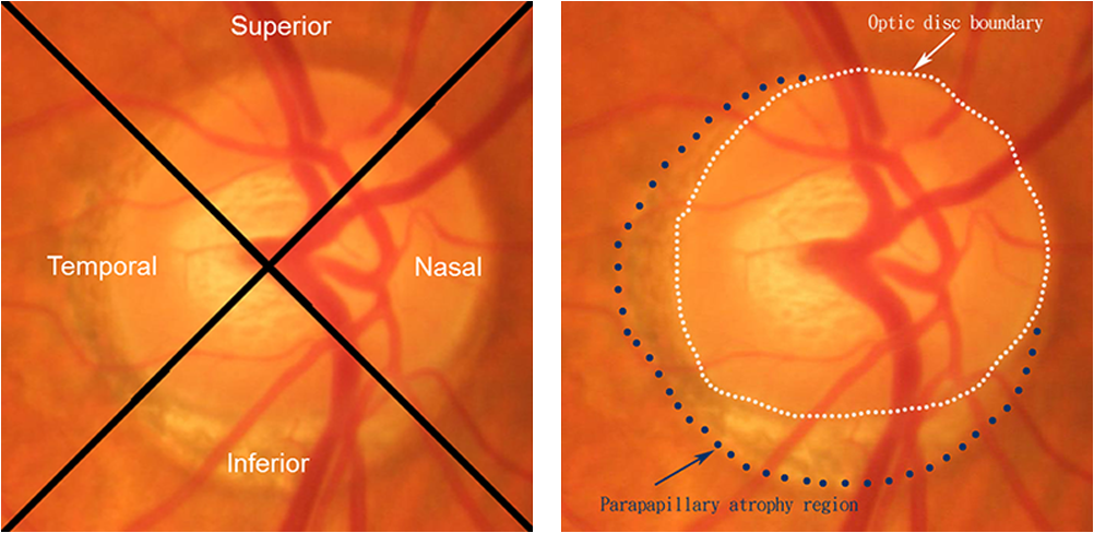 parapapillary atrophy and optic disc region assessment