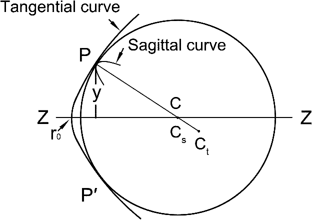 Anterior corneal asphericity calculated by the tangential radius of