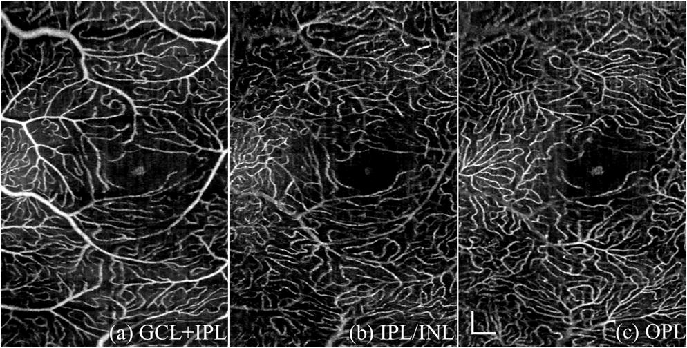 User-guided segmentation for volumetric retinal optical