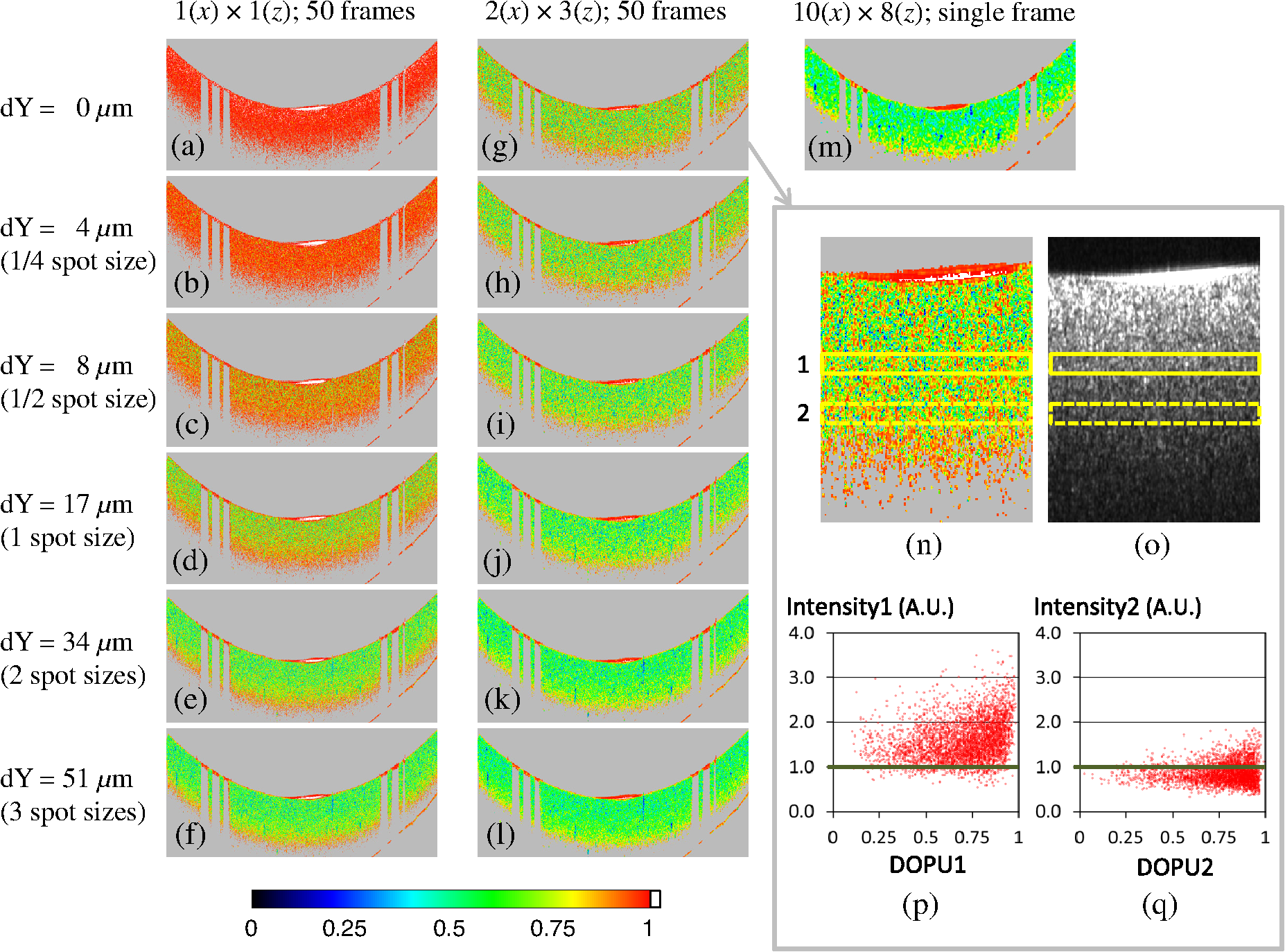 Analysis of optimum conditions of depolarization imaging by ...