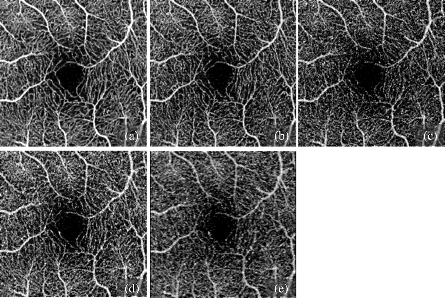 Methods And Algorithms For Optical Coherence Tomography Based