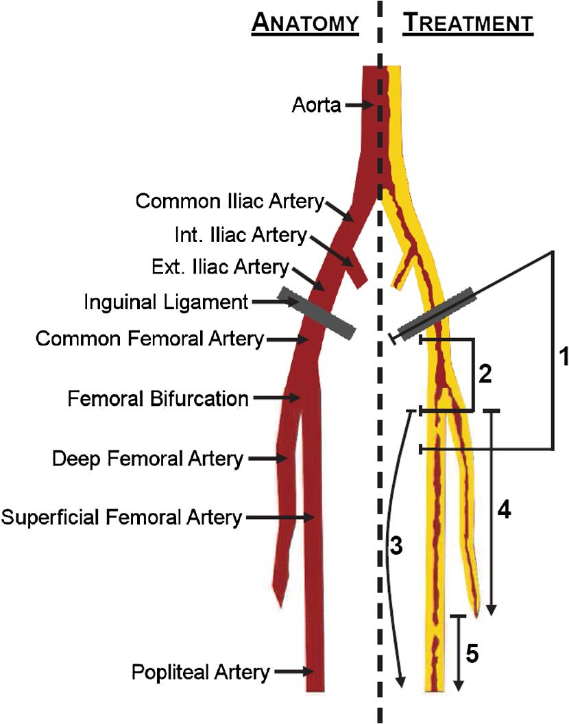 Laser Scoop Desobliteration A Method For Minimally Invasive Remote