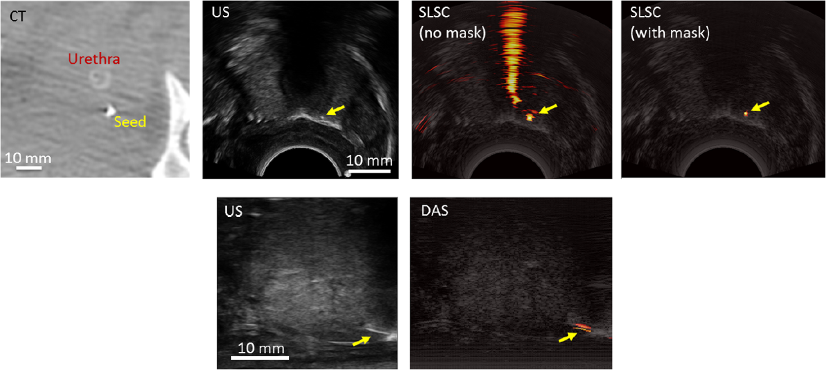 Transurethral light delivery for prostate photoacoustic imaging