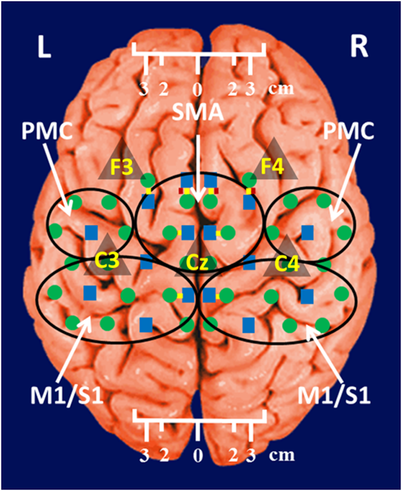 Evaluation Of Cortical Plasticity In Children With Cerebral Palsy
