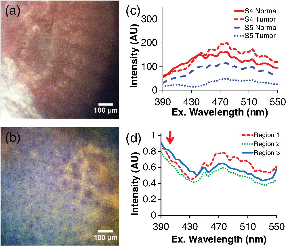 Hyperspectral imaging fluorescence excitation scanning for colon