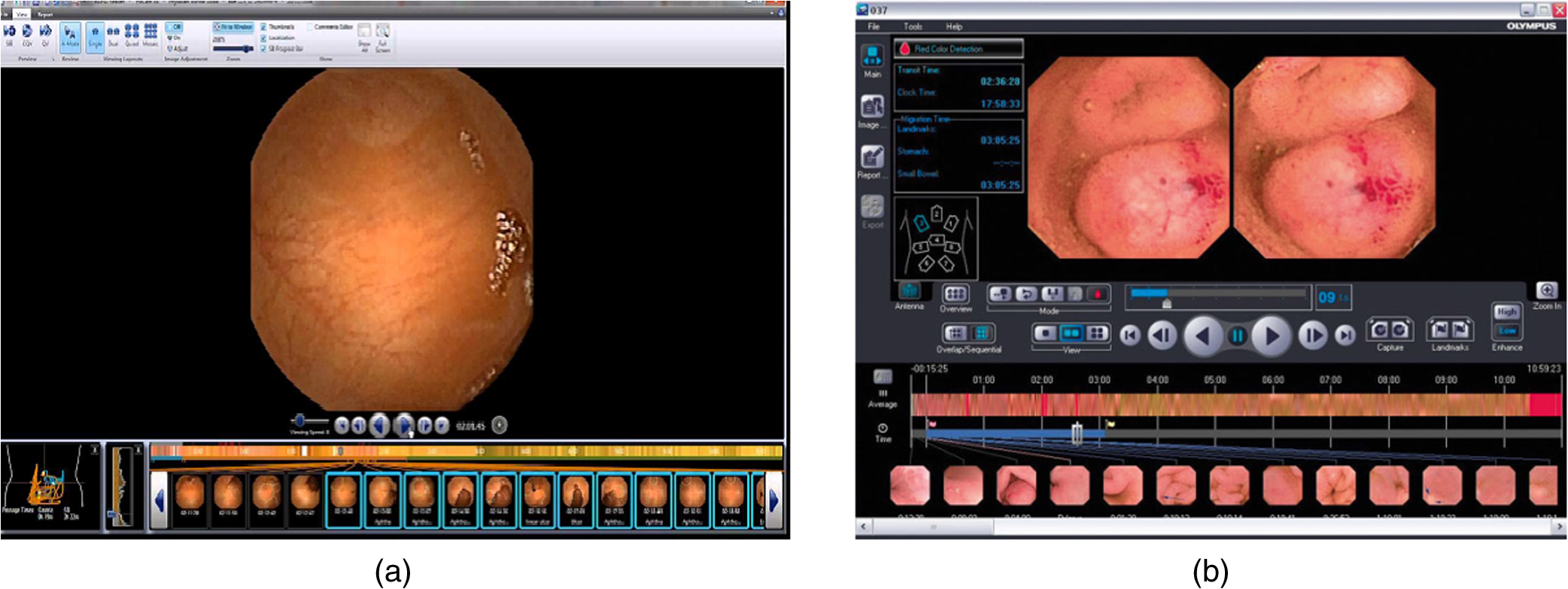 Automatic blood detection in capsule endoscopy video