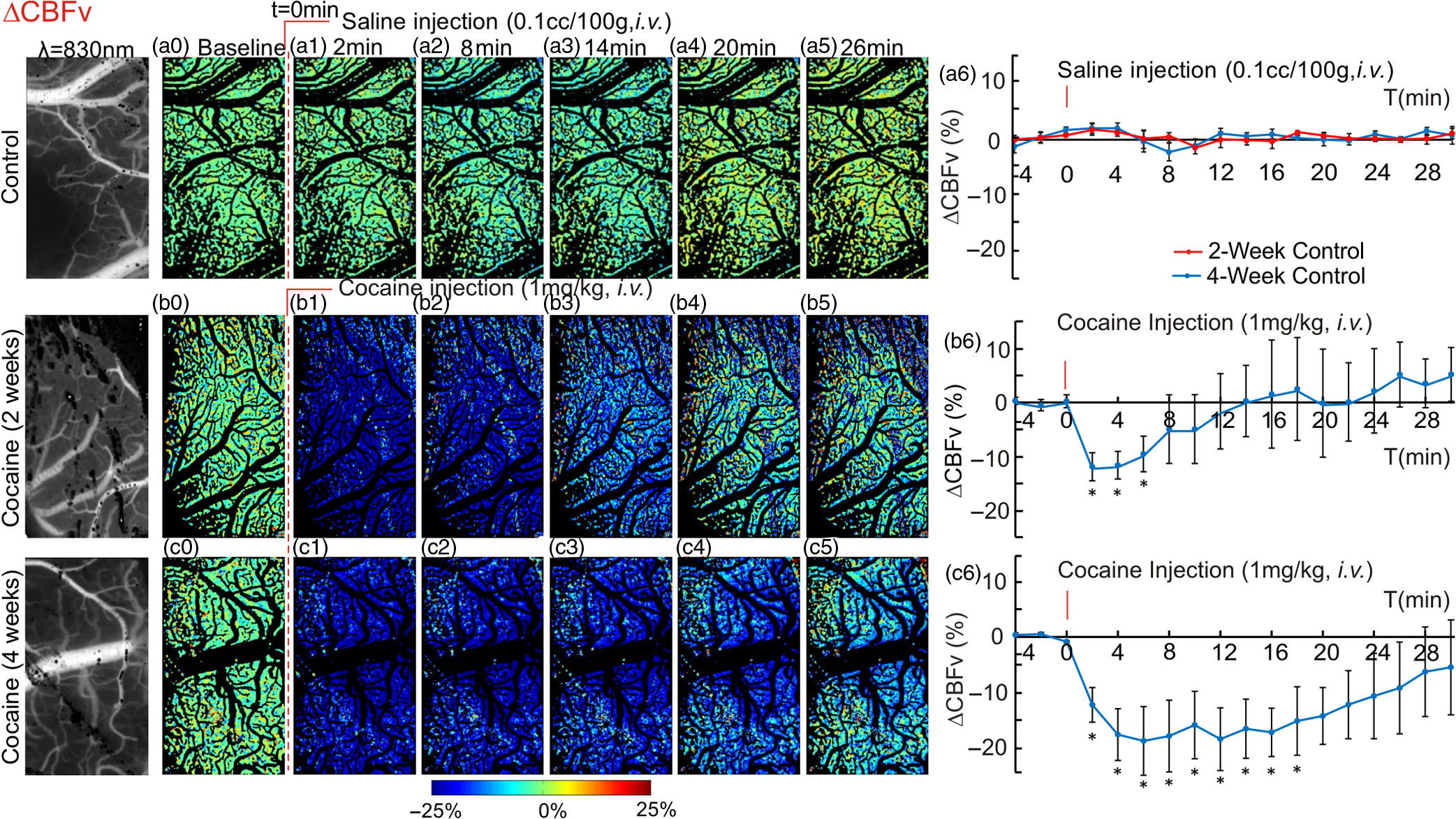 Chronic disrupts neurovascular networks and cerebral