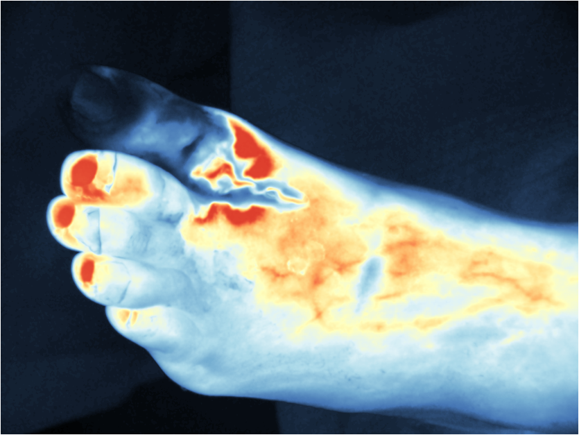 Review Of Near Infrared Methods For Wound Assessment