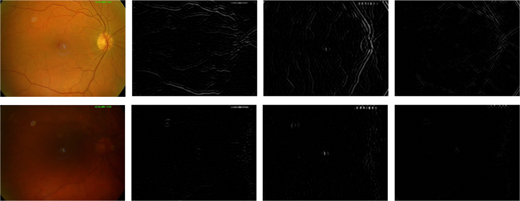 Retinal image quality assessment based on image clarity and