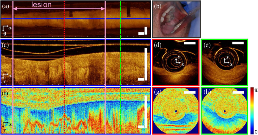 Review of optical coherence tomography in oncology