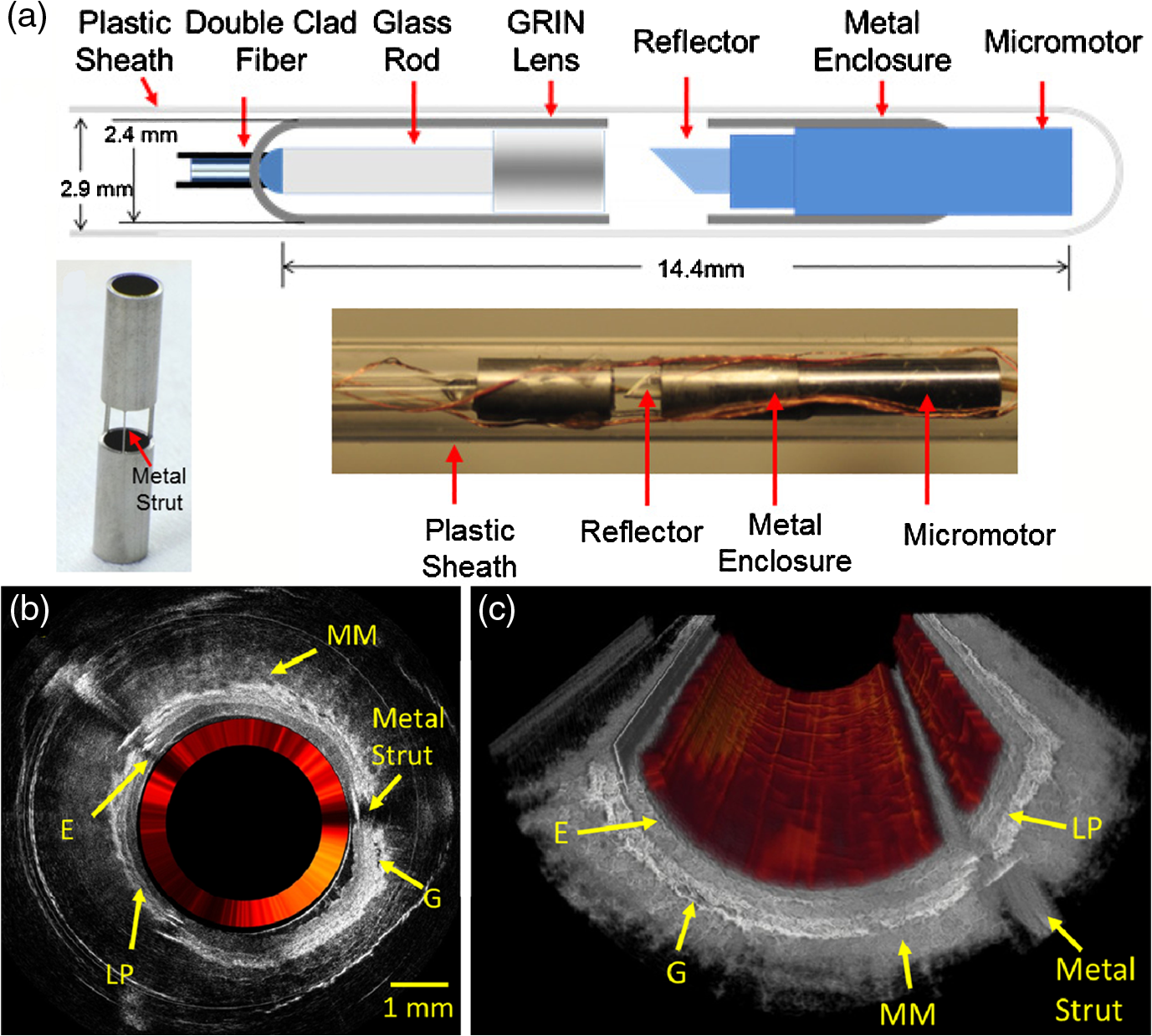 Clinical Translation Of Handheld Optical Coherence Tomography Fiber Optics Diagram Diffusive Belts The Normal Layered Structures Esophagus Can Be Clearly Visualized Including Epithelium E Lamina Propria Lp Muscularis Mucosa Mm