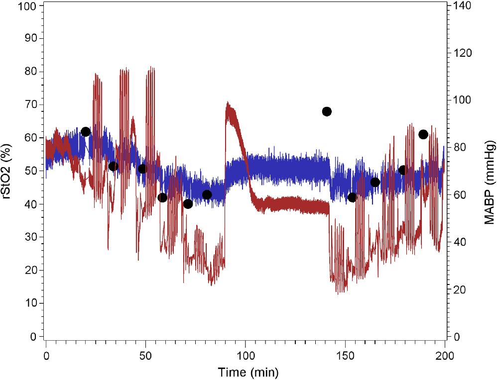 Quantifying cerebral hypoxia by near-infrared spectroscopy tissue