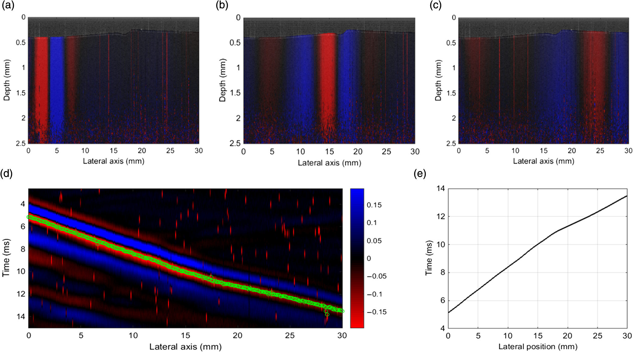Comparative Study Of Shear Wave Based Elastography Techniques In Axis Gaul Fig 11