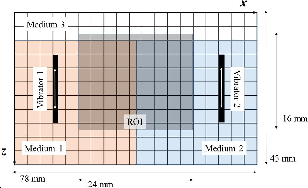 Comparative study of shear wave-based elastography