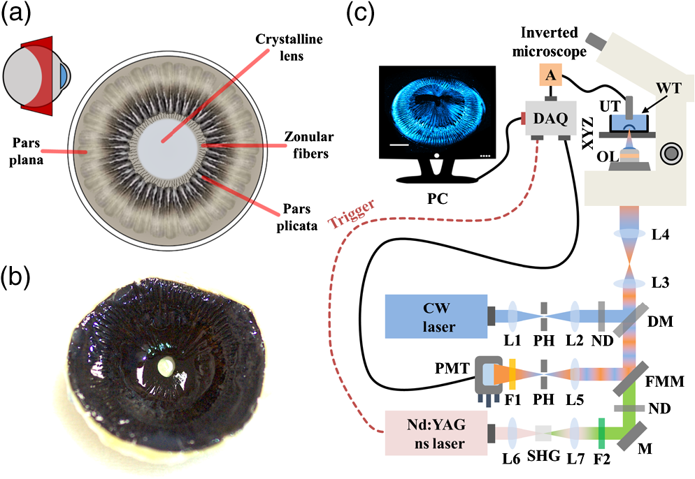 Delineating the anatomy of the ciliary body using hybrid optical and ...