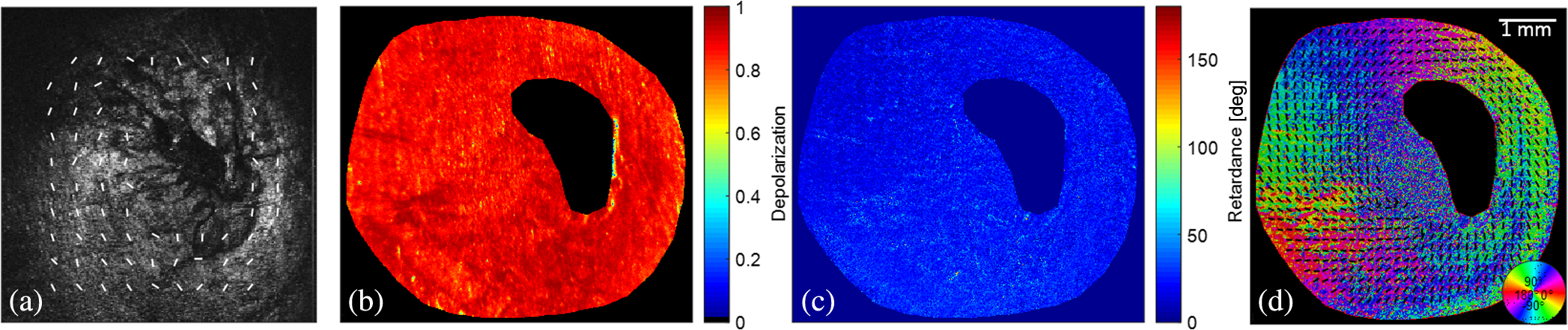 Use of Mueller matrix polarimetry and optical coherence
