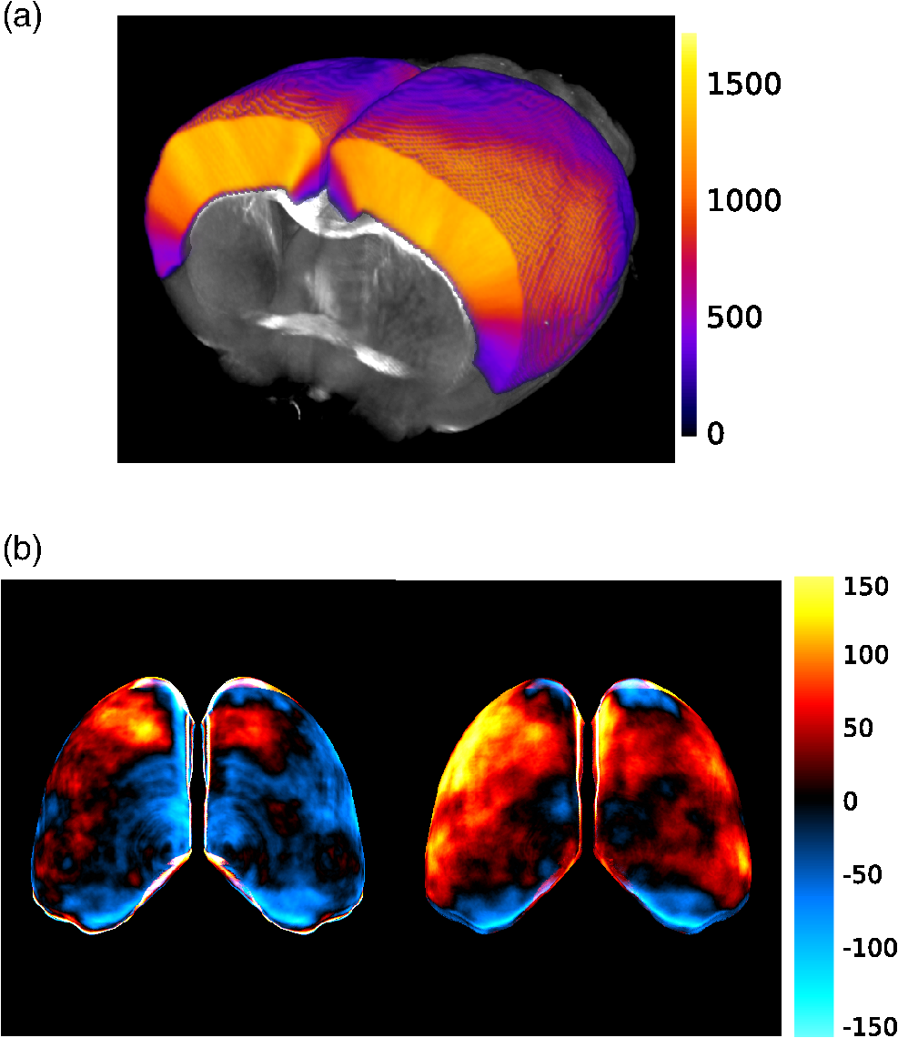 comparing three dimensional serial optical coherence tomography rh spiedigitallibrary org