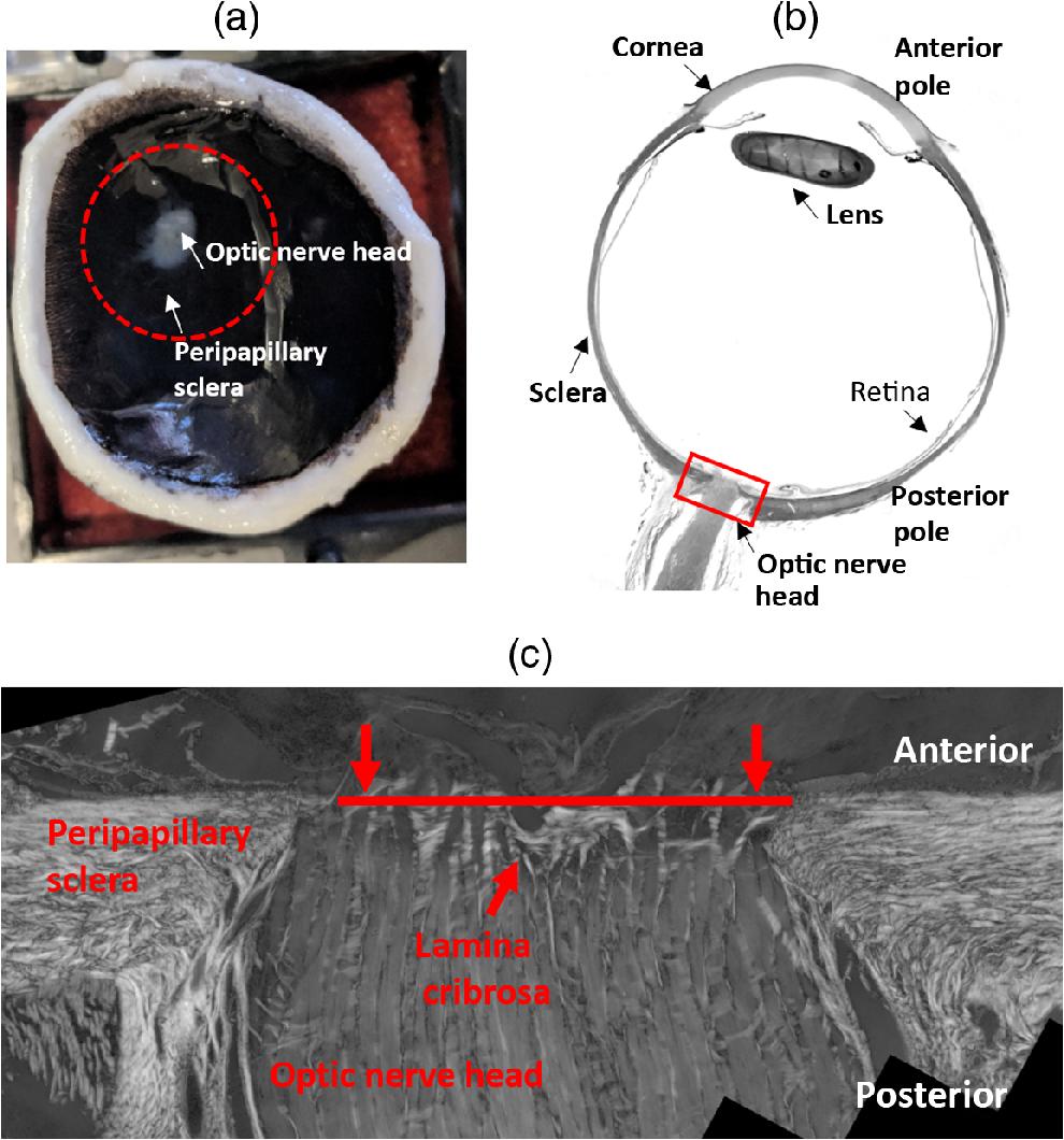 Structured Polarized Light Microscopy For Collagen Fiber