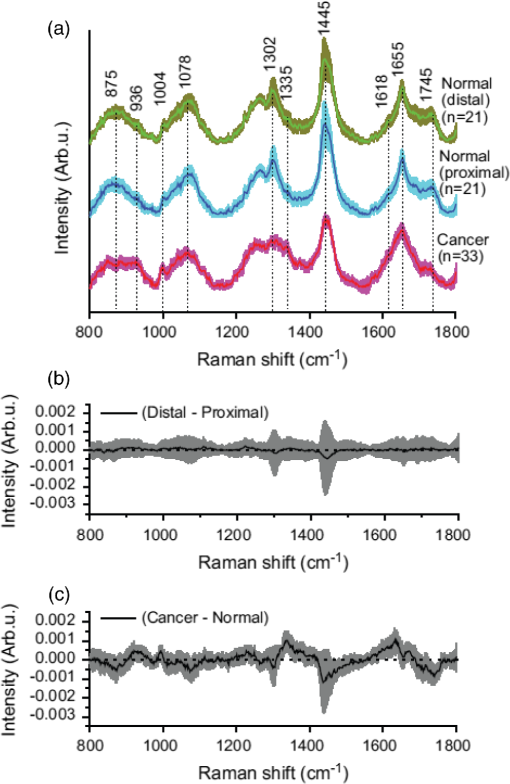 i]In-vivo[/i] Raman spectroscopy: from basics to applications