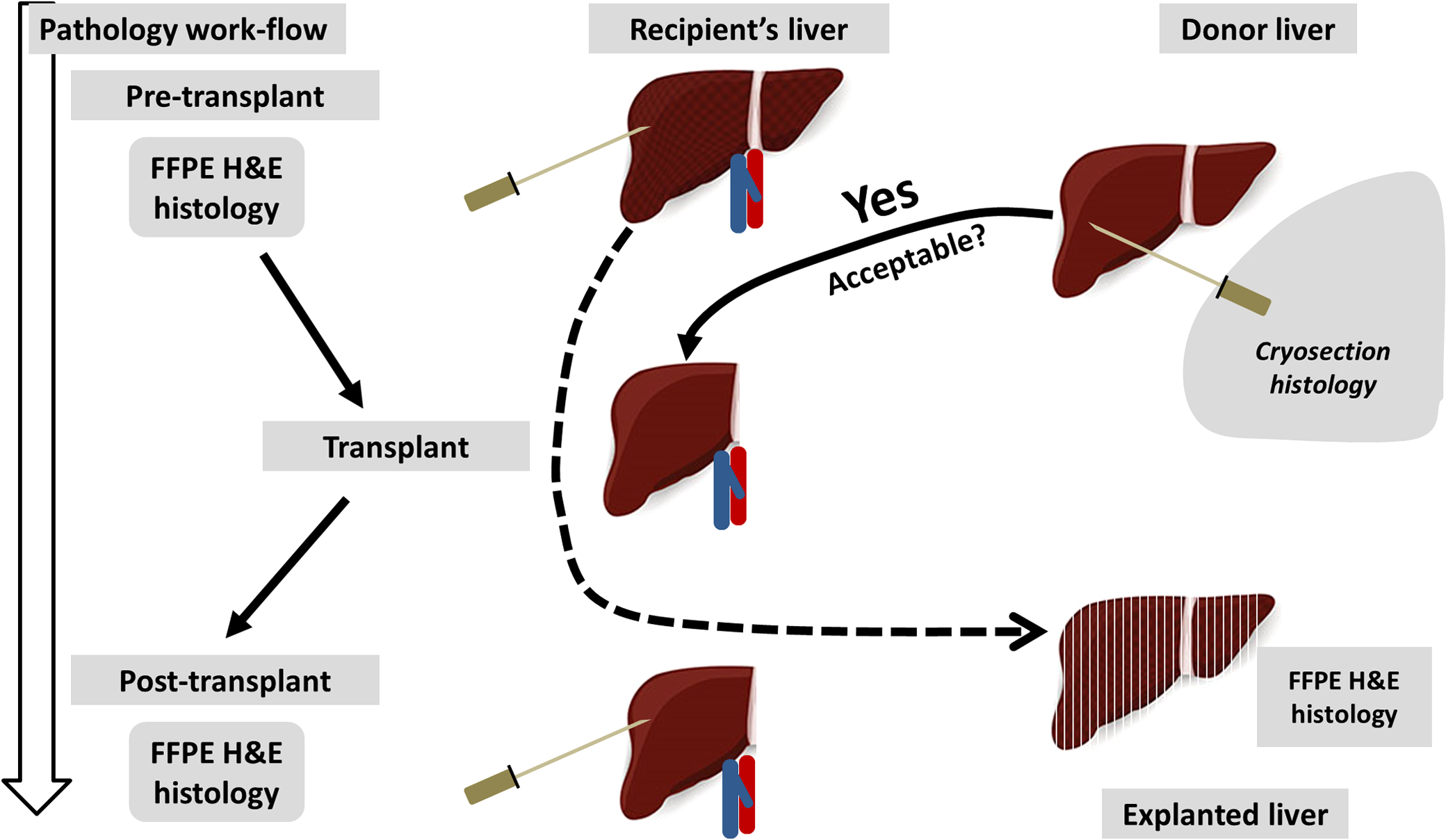 Perspective Review On Solid Organ Transplant Needs In Point Of Care 2009 Ford F 150 Wiring Schematic Mas Post Pathology Examines The Allograft Liver To Support Clinical Management Survival And Long Term Functioning