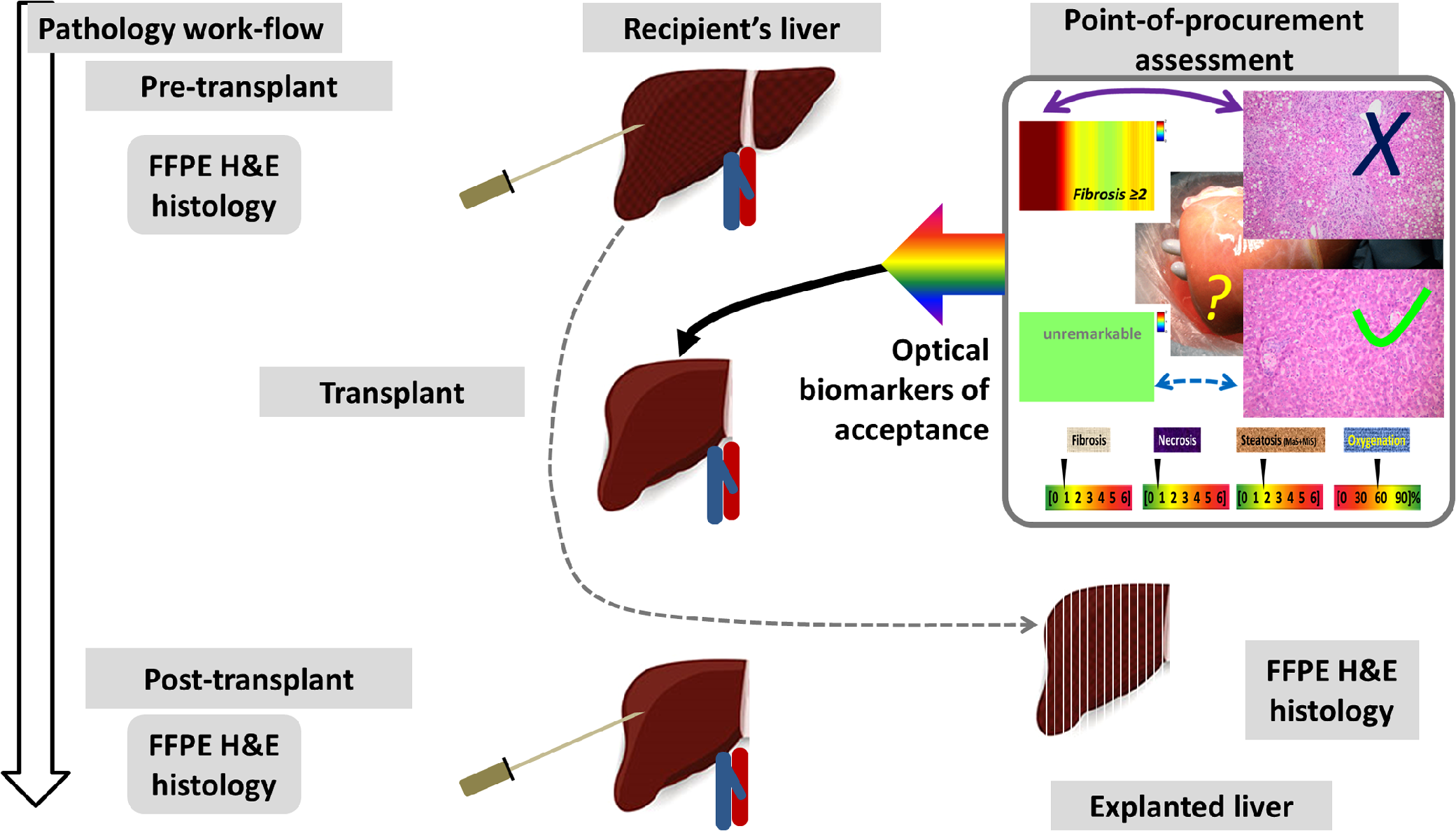 Perspective Review On Solid Organ Transplant Needs In Point Of Care 2009 Ford F 150 Wiring Schematic Mas Probing Optical Biomarkers The Imagery And Tissue Features Corresponding To A Few Significant Pathological Endpoints Are Delivered Real Time As