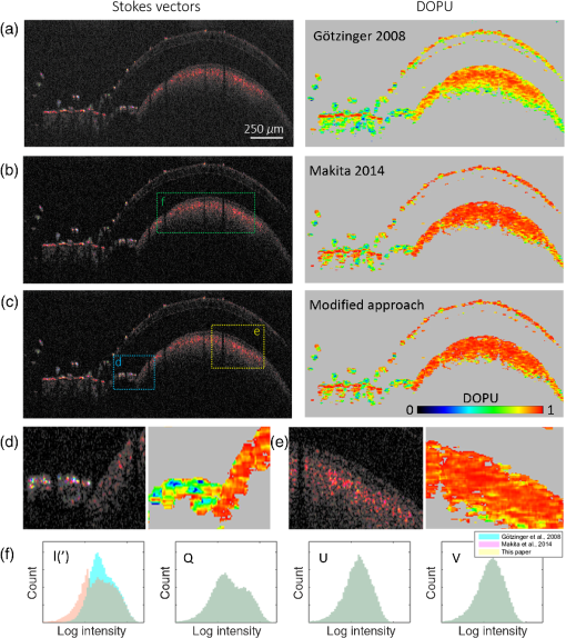 Polarization-sensitive optical coherence tomography imaging
