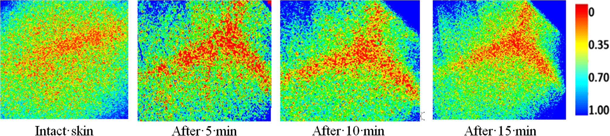 Measurement of tissue optical properties in the context of