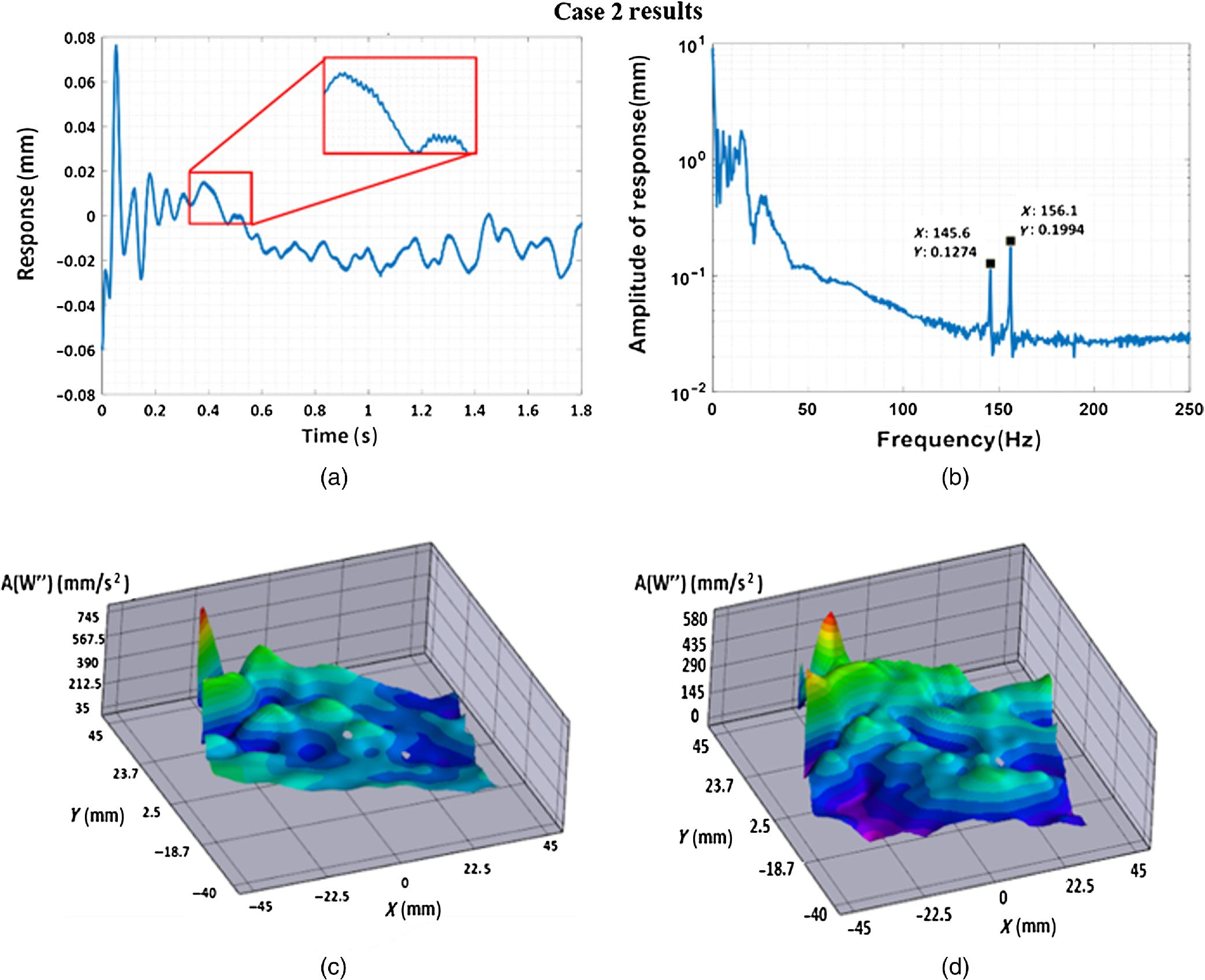 Vibration analysis of healthy skin: toward a noninvasive