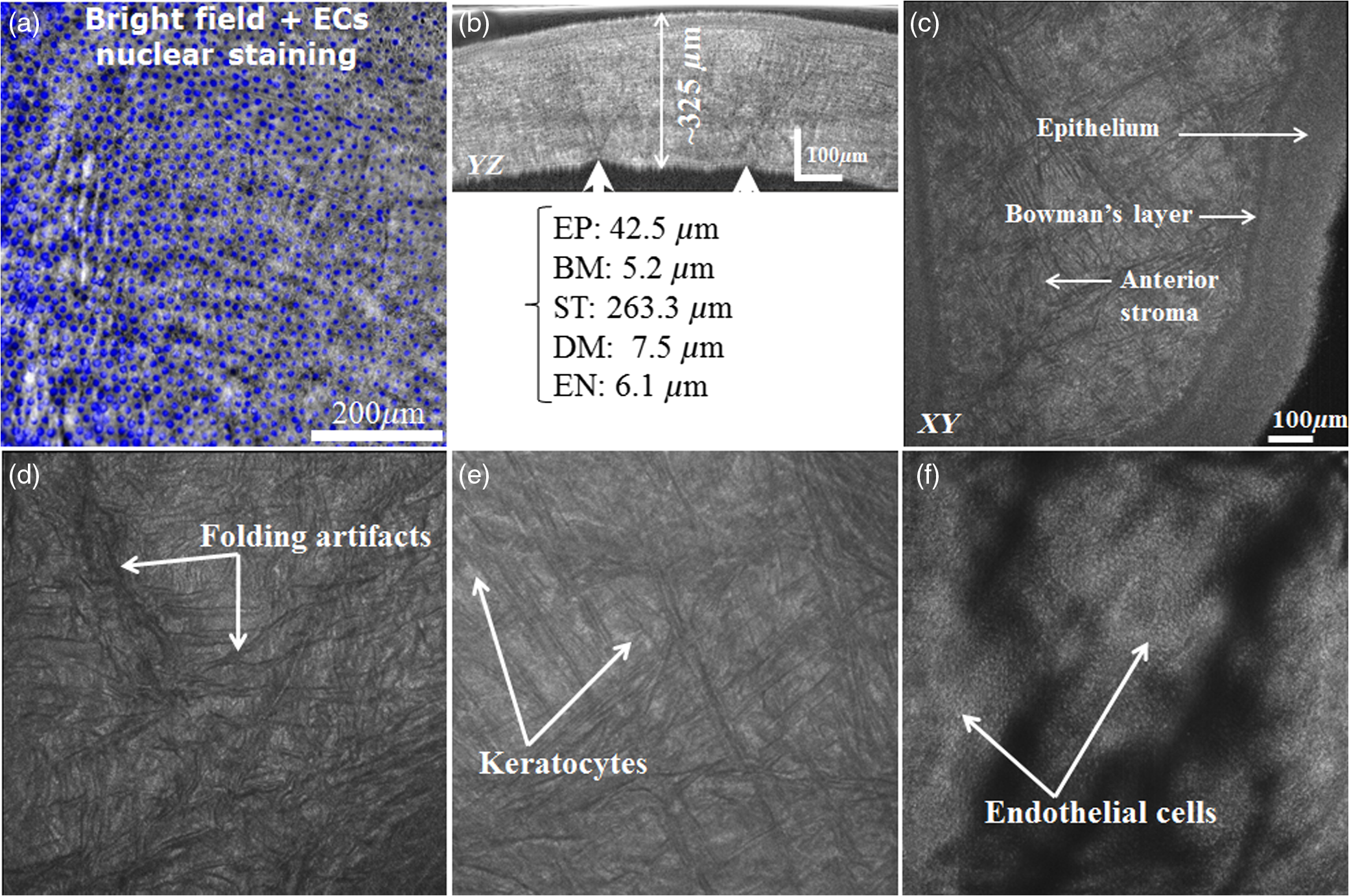 Capabilities of Gabor-domain optical coherence microscopy