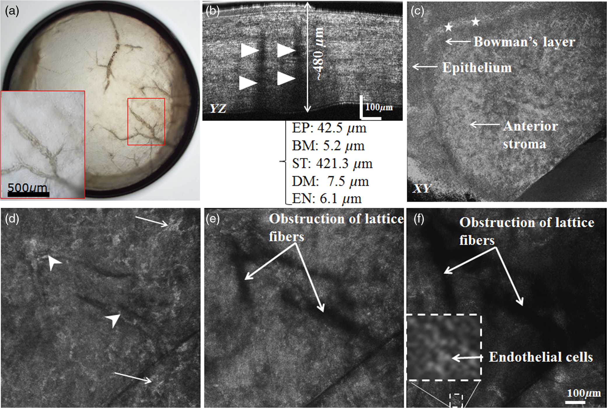 Capabilities of Gabor-domain optical coherence microscopy