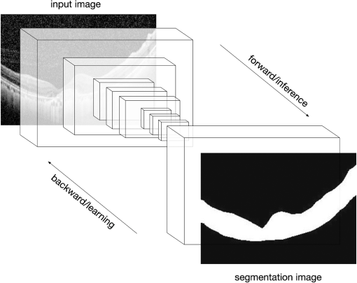 Automatic detection of retinal regions using fully