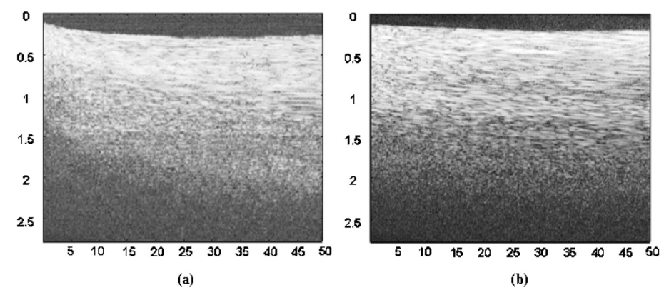 Dynamic optical clearing effect of tissue impregnated with