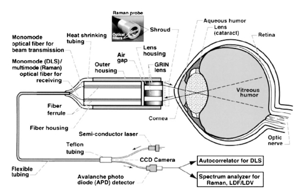 ocular static and dynamic light scattering  a noninvasive diagnostic tool for eye research and