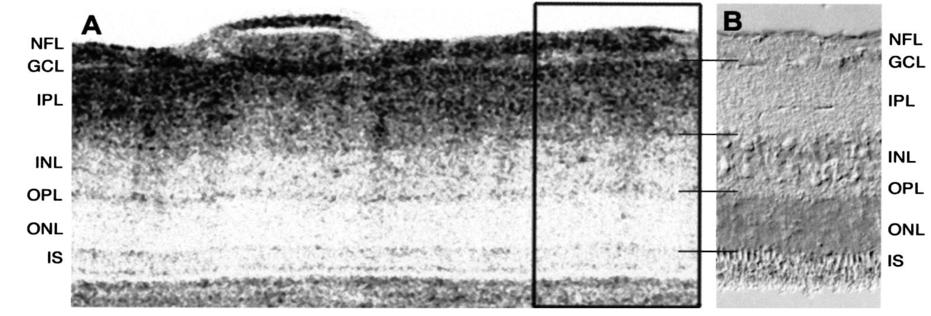 Ultrahigh-resolution optical coherence tomography