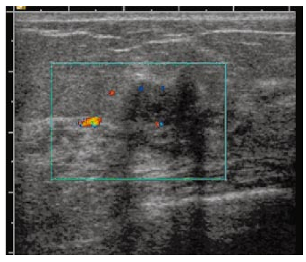 ... the left breast of a 45-year-old patient and was considered as highly  suspicious. The ultrasound revealed irregular shape and posterior shadowing  with ...