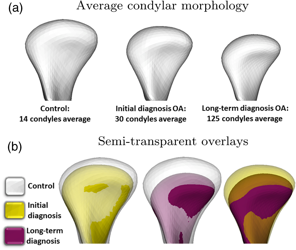 Diagnostic index of three-dimensional osteoarthritic changes