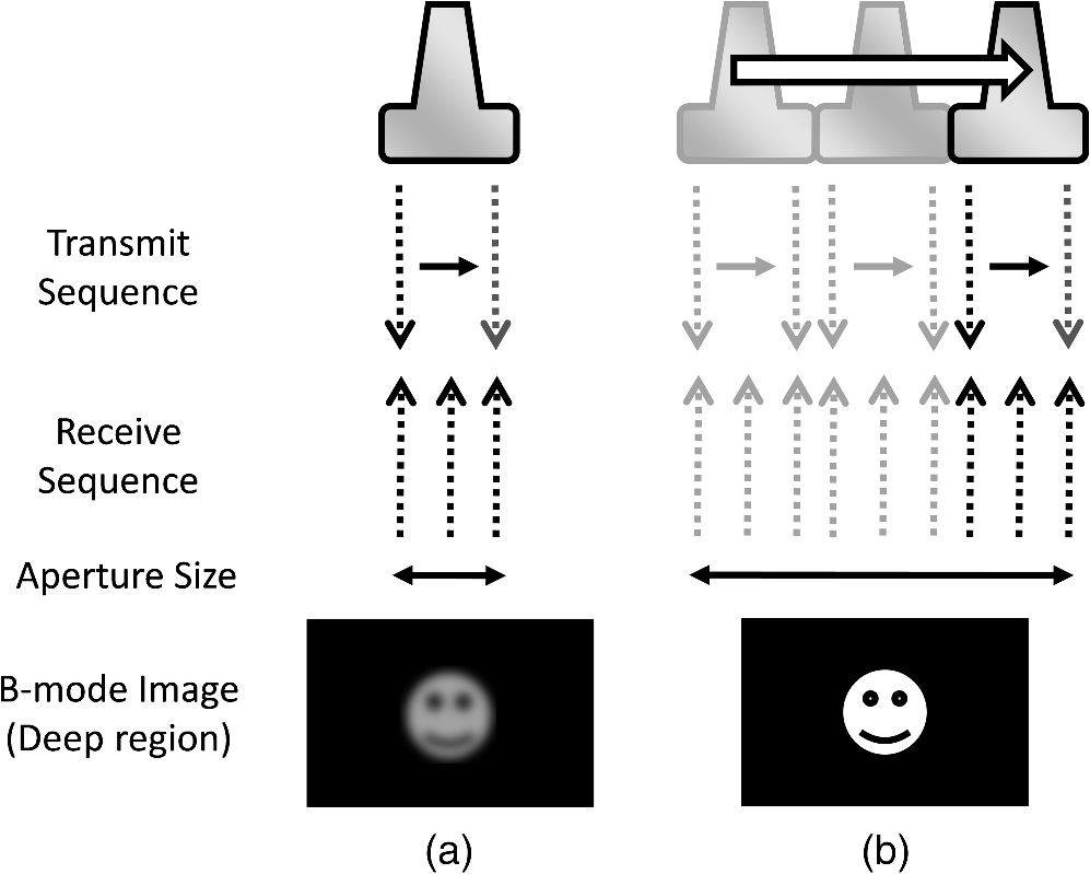 Synthetic tracked aperture ultrasound imaging design simulation jmi32027001f001g pooptronica Images
