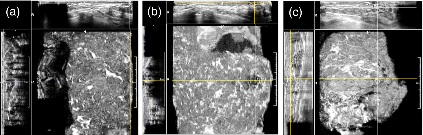 Automated quality assessment in three-dimensional breast ultrasound