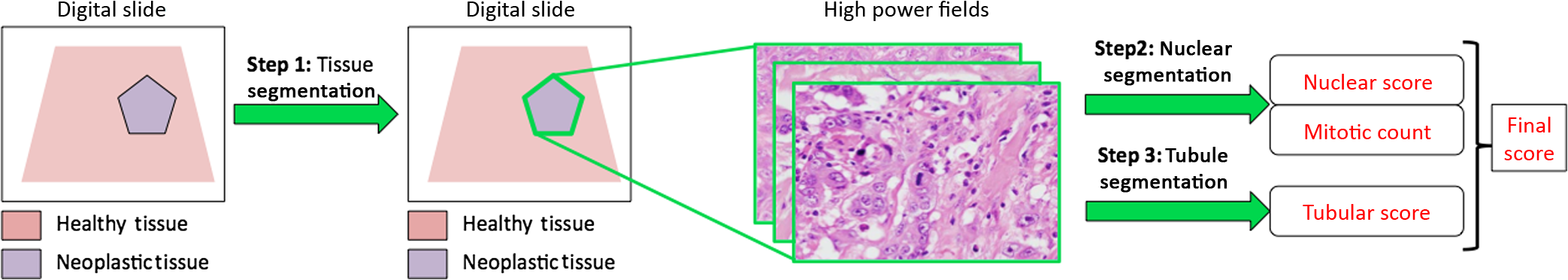 Invasive ductal breast carcinoma detector that is robust to