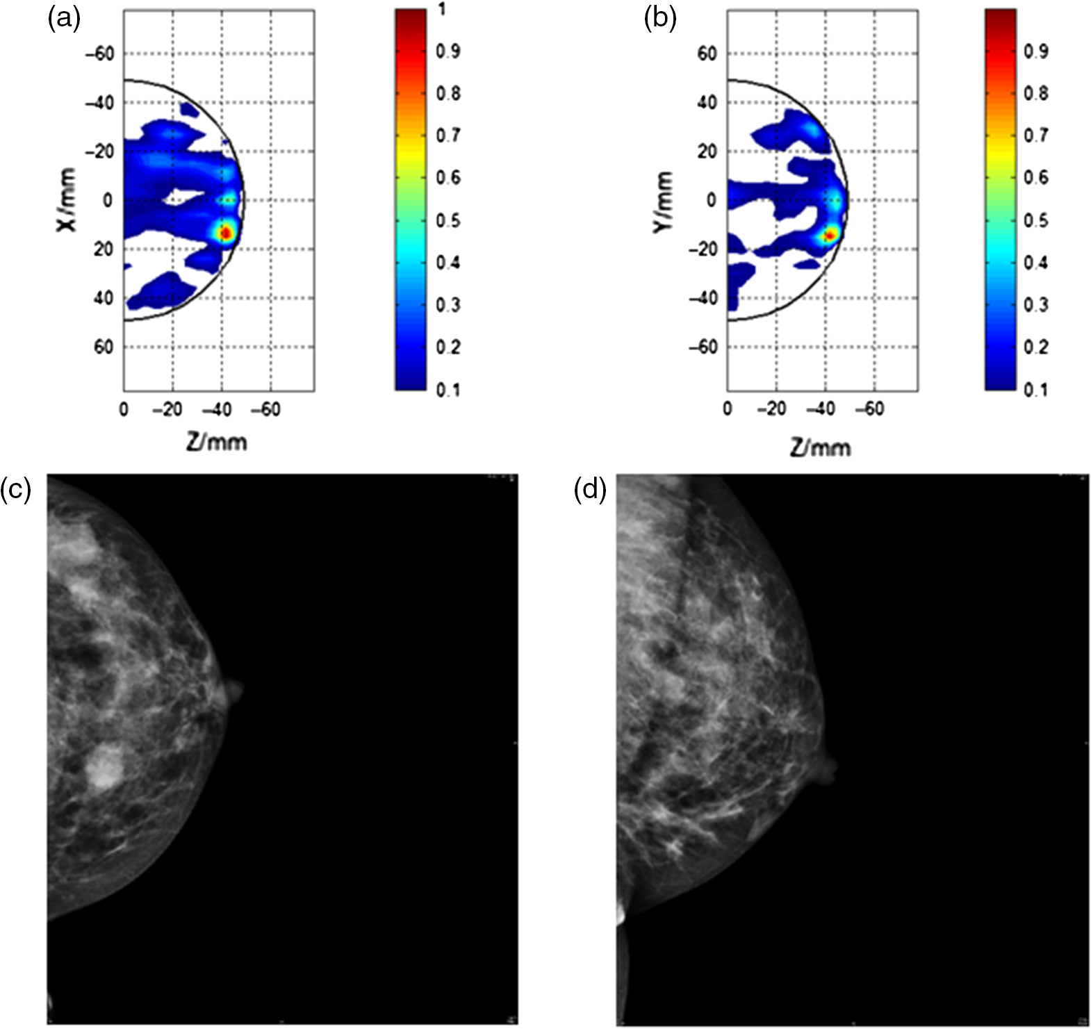 Maria m4 clinical evaluation of a prototype ultrawideband radar jmi33033502f004g sciox Choice Image