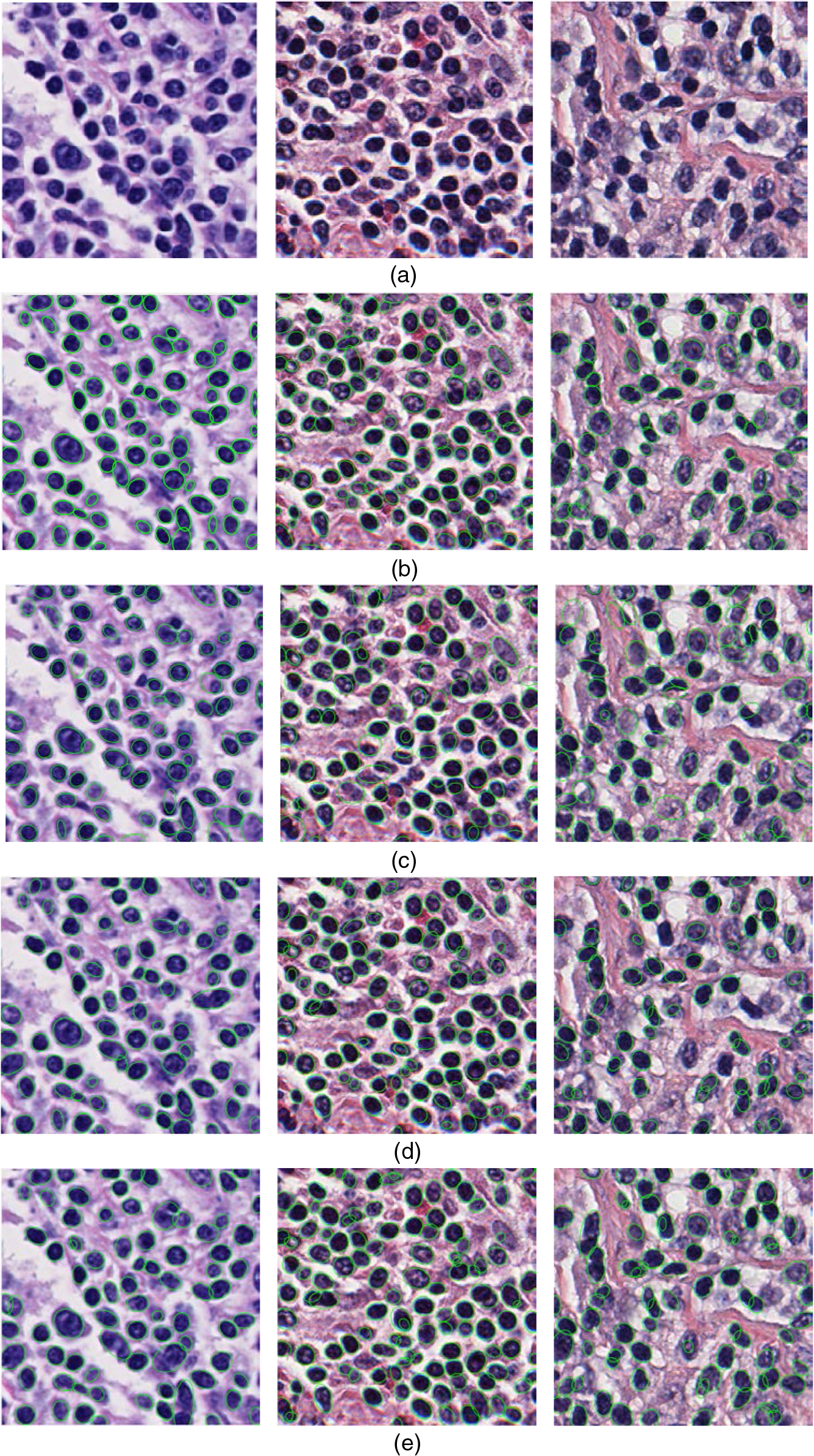 Automatic extraction of cell nuclei from H&E-stained