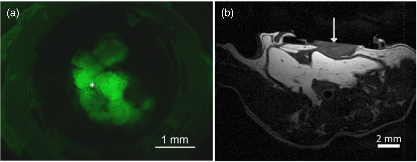Review of quantitative multiscale imaging of breast cancer