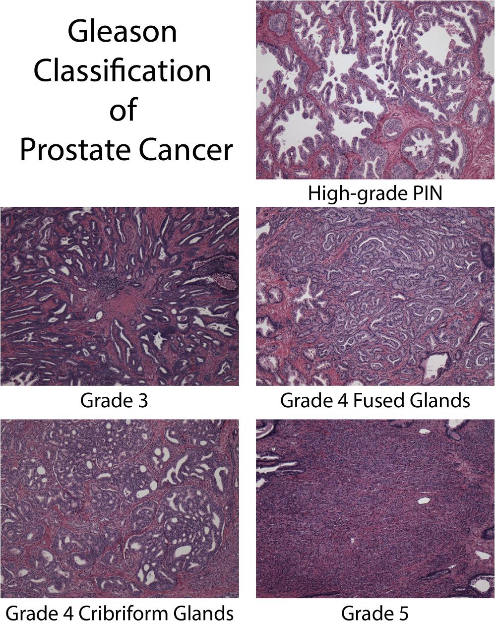 prostate cancer high grade pin