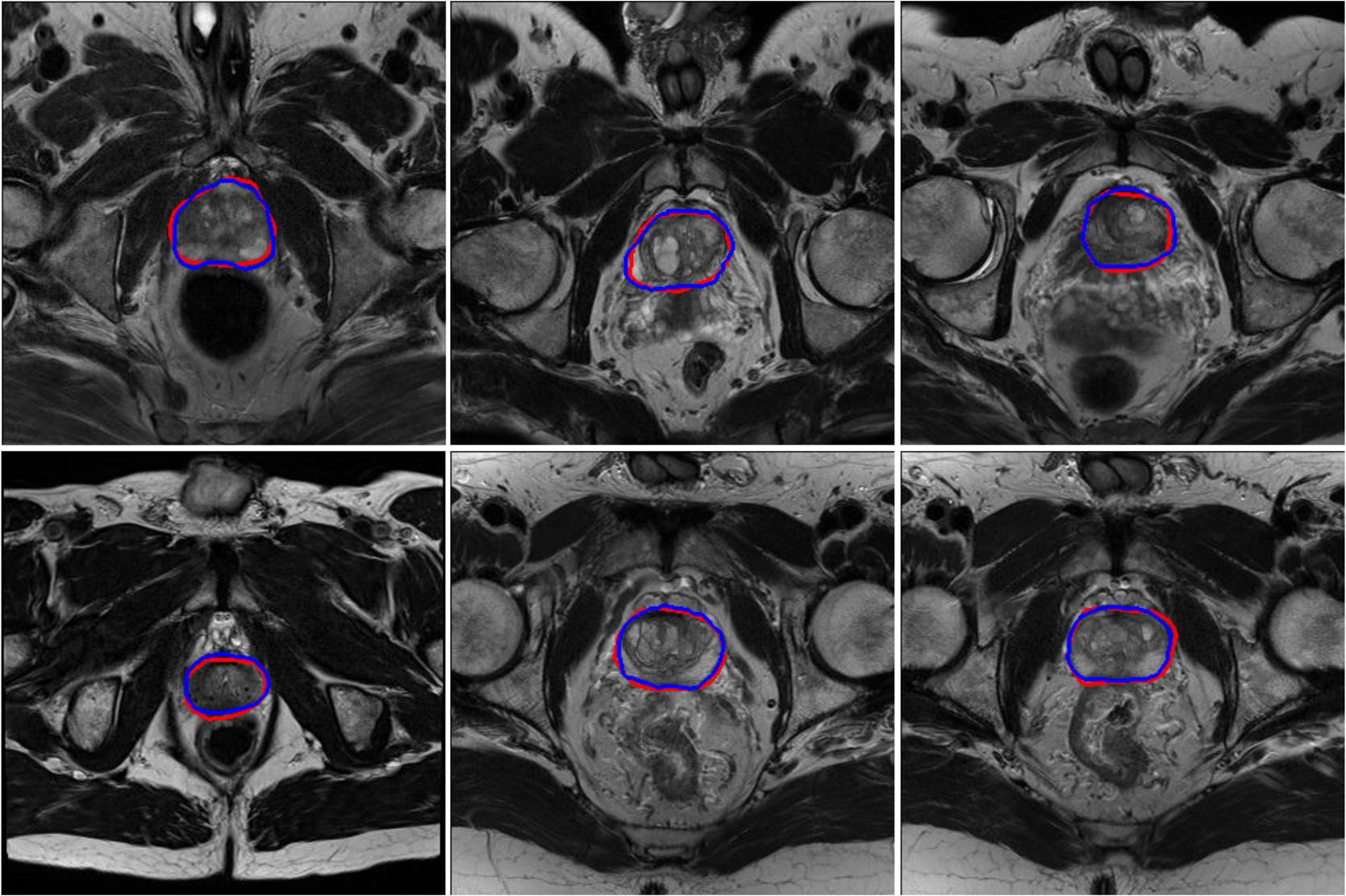 PSNet: prostate segmentation on MRI based on a convolutional neural