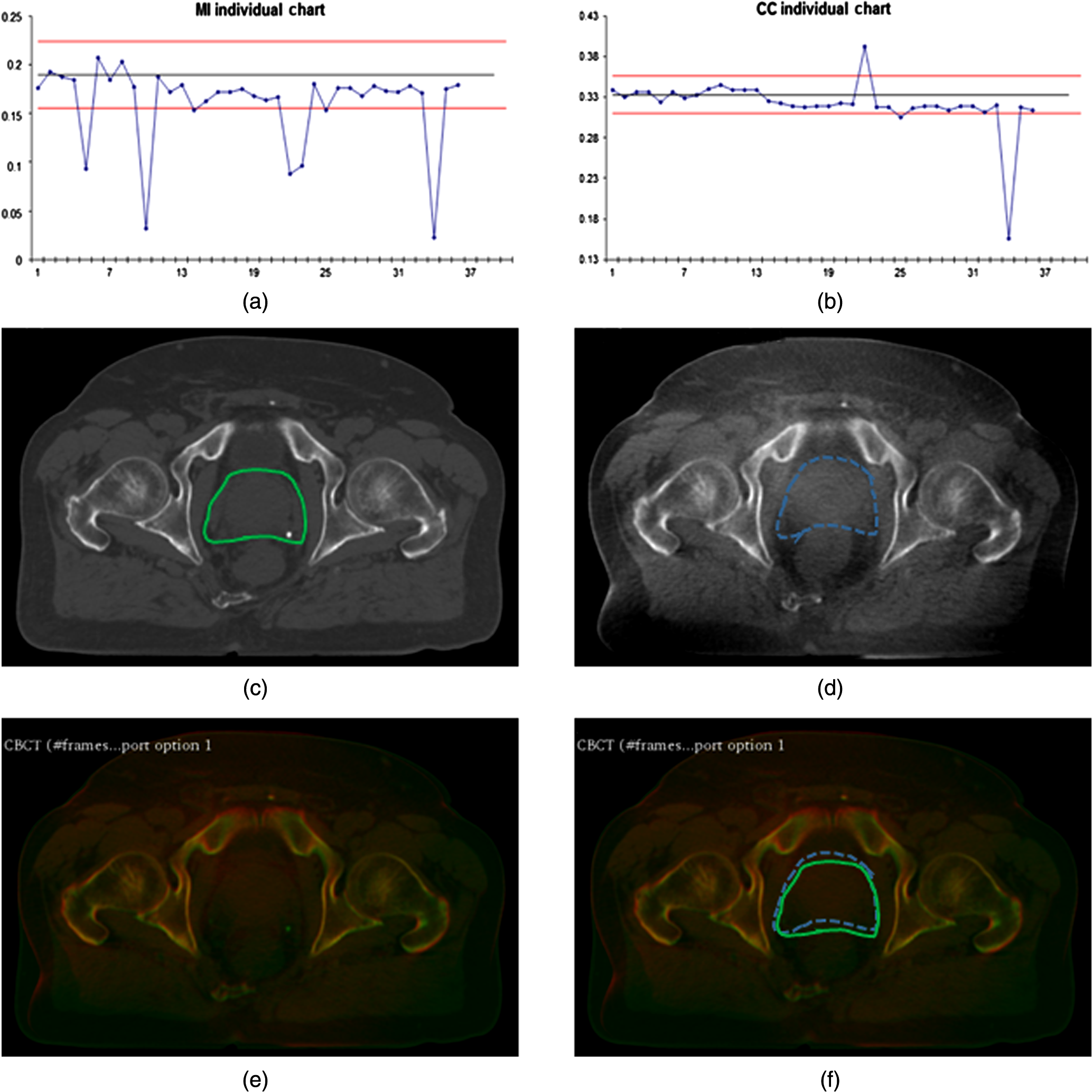 Image registration assessment in radiotherapy image guidance based jmi52021221f007g fandeluxe Image collections