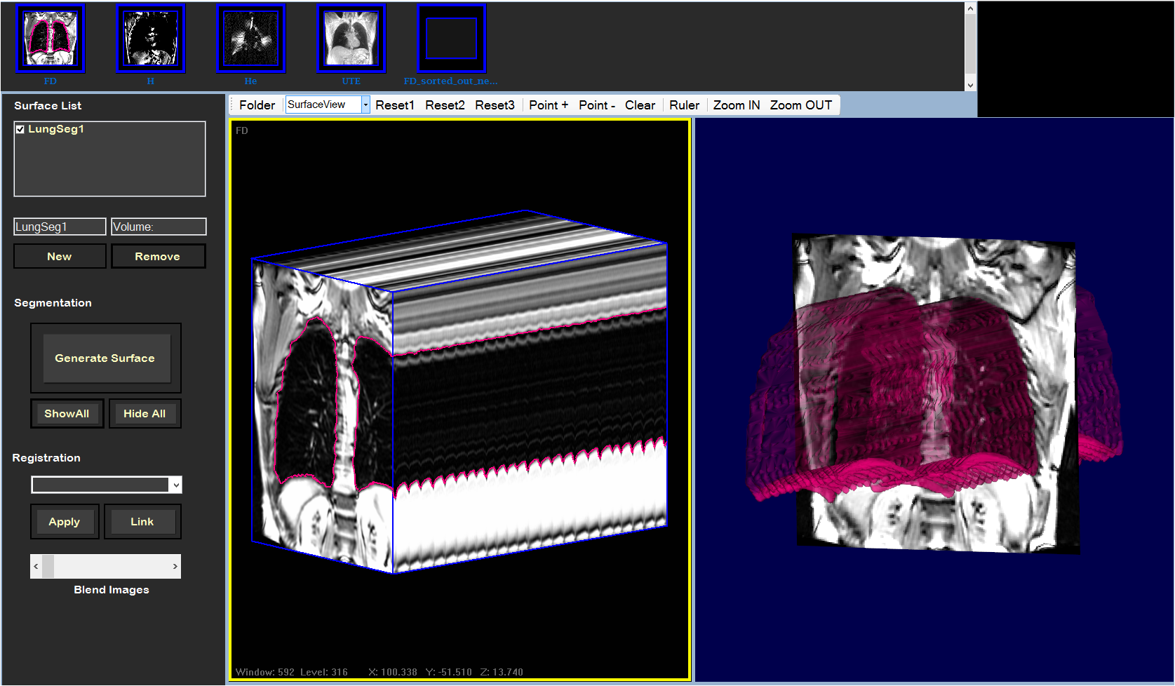 Development Of A Pulmonary Imaging Biomarker Pipeline For Is Not So User Friendly We Will Explain Bellow Why This Software Graphical Interface